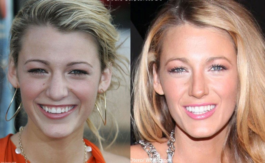 Blake Lively two minor plastic surgery procedures